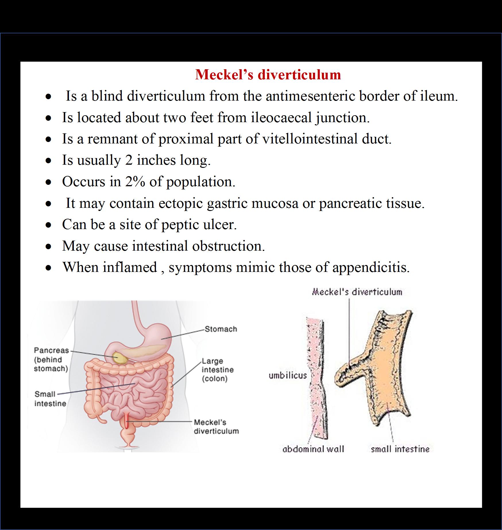 Anatomy of ileum